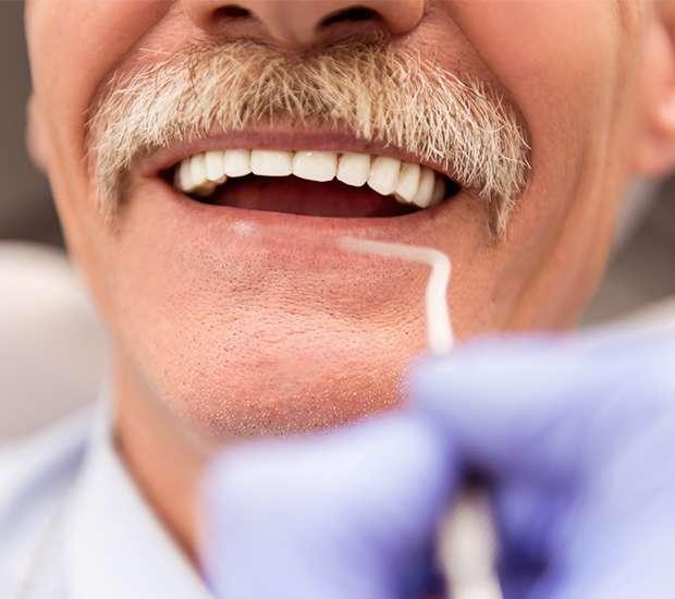 Brooklyn Adjusting to New Dentures