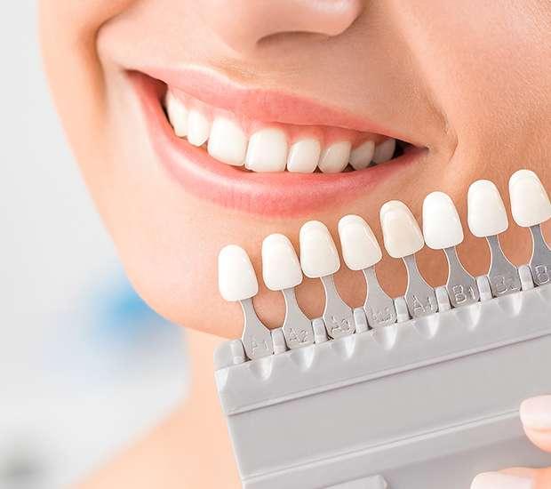 Brooklyn Dental Veneers and Dental Laminates